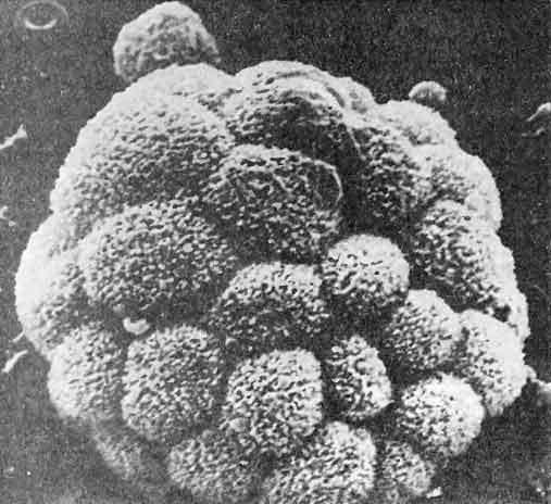 Увоморулин, одна из разновидностей САМ
